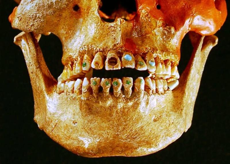 Инкрустированные зубы